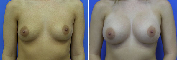 breast-augmentation-01